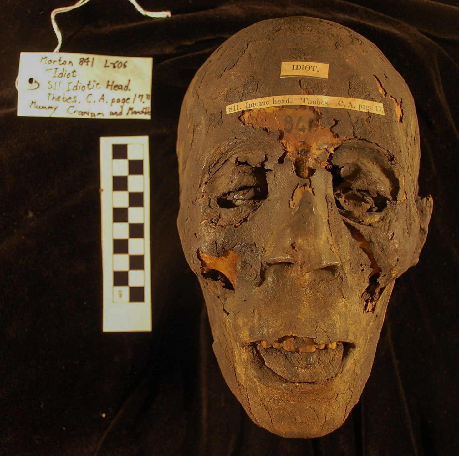 Figure 3: Mummified Egyptian crania #0841 of the Morton Cranial Collection, Penn Museum Open Research Scan Archive (ORSA).